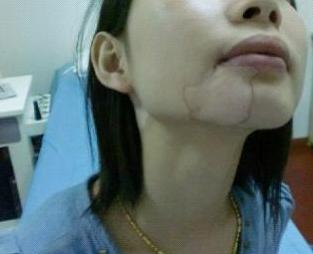 北京白癜风医院教你护理成人白癜风方法有哪些