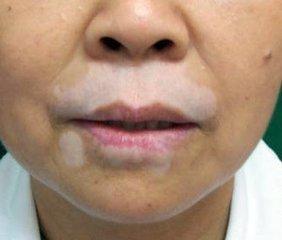 北京治疗皮肤病最好医院:脸部白癜风如何进行治疗