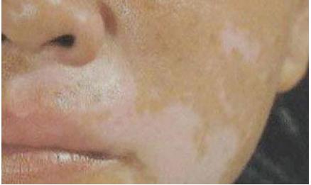 北京治白癜风的正规医院:脸部为什么会长白癜风